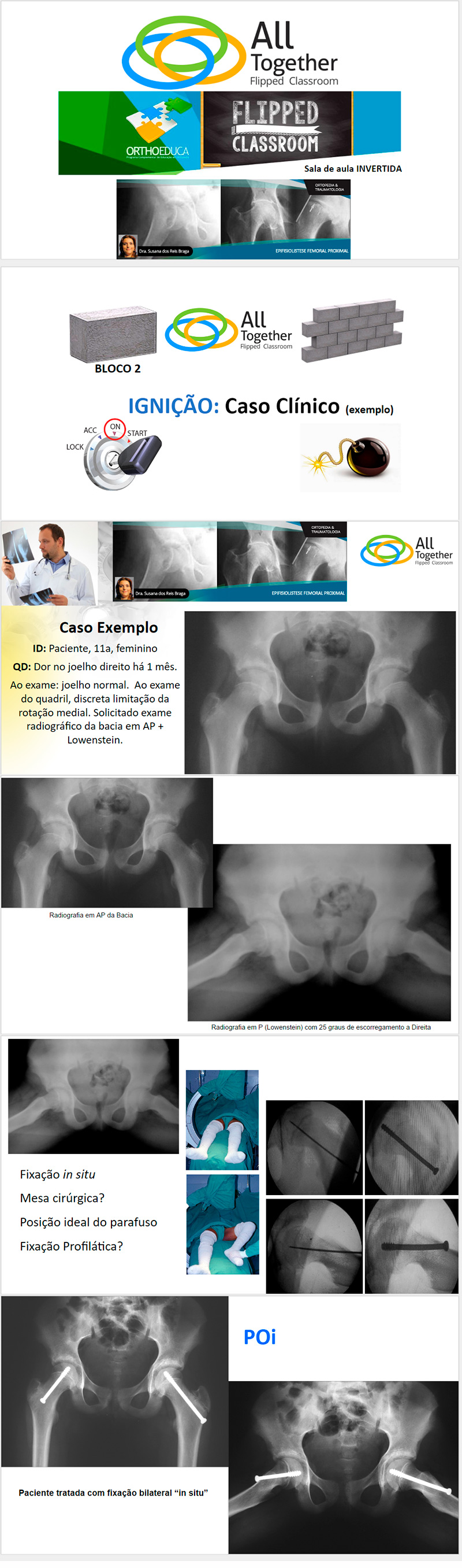 Epifisiolistese Femoral Proximal - Caso clínico de hoje no All Together às 12h Participe!